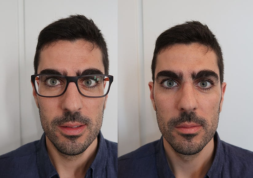 MYOPIA AND MILD-TO-MODERATE ASTIGMATISM